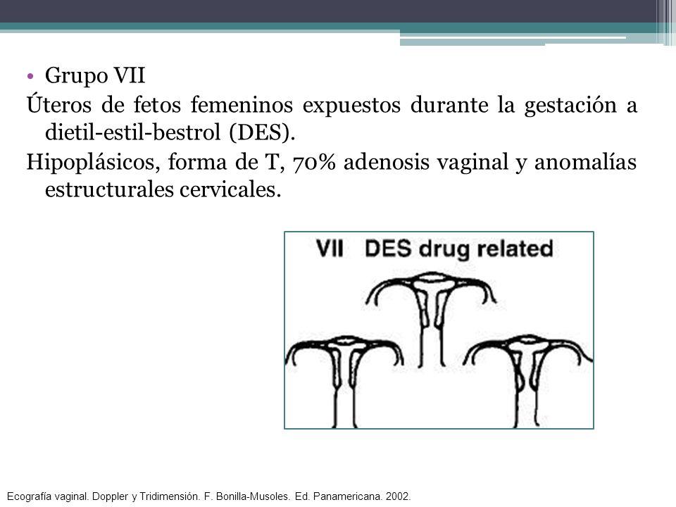 Grupo VII Úteros de fetos femeninos expuestos durante la gestación a dietil-estil-bestrol (DES).