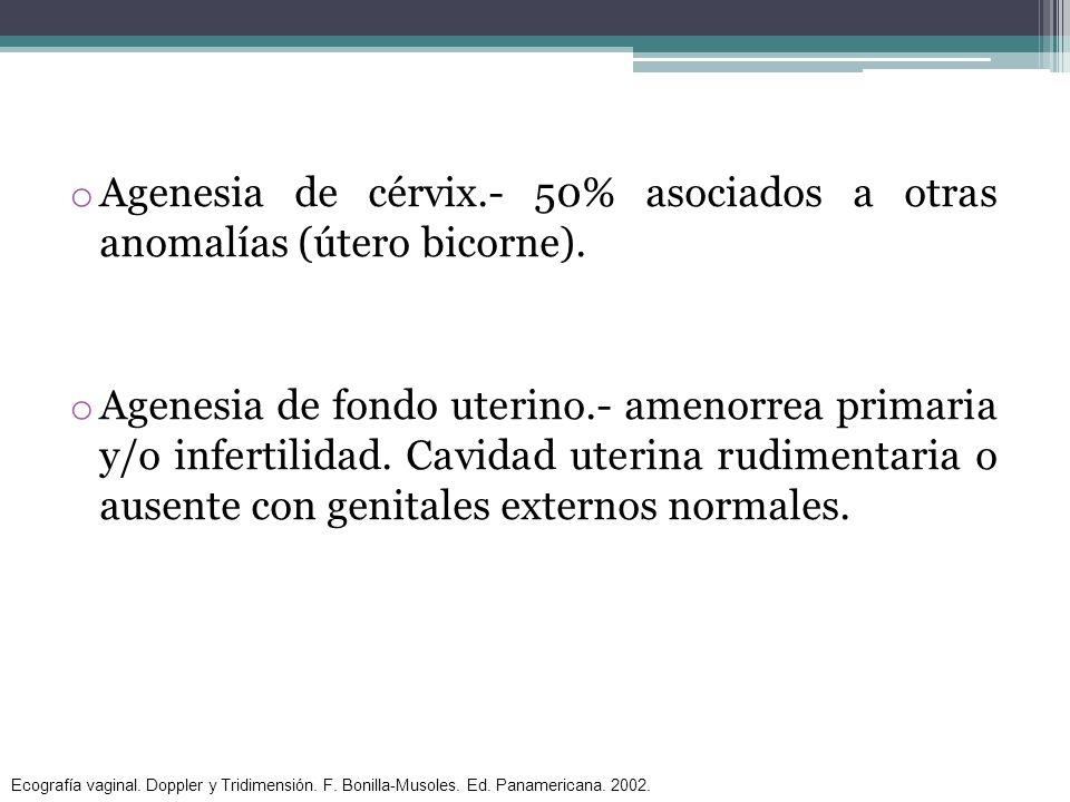 Agenesia de cérvix.- 50% asociados a otras anomalías (útero bicorne).