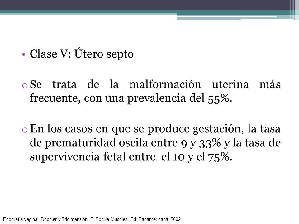 Clase V: Útero septo Se trata de la malformación uterina más frecuente, con una prevalencia del 55%.