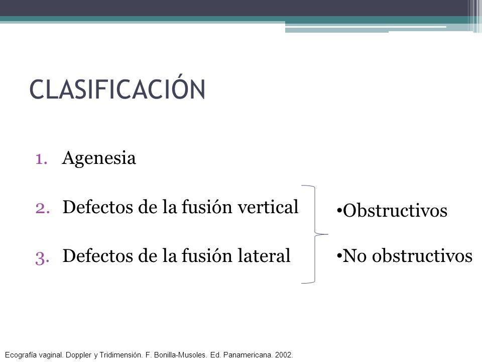 CLASIFICACIÓN Agenesia Defectos de la fusión vertical
