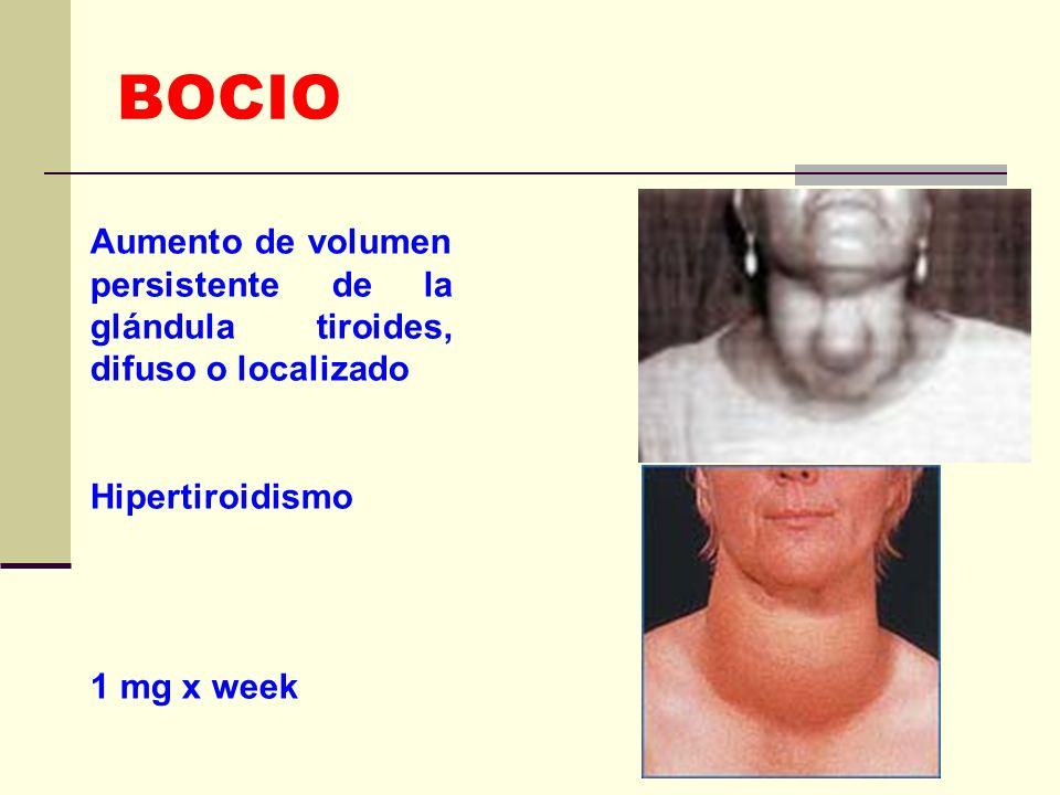 BOCIO Aumento de volumen persistente de la glándula tiroides, difuso o localizado. Hipertiroidismo.