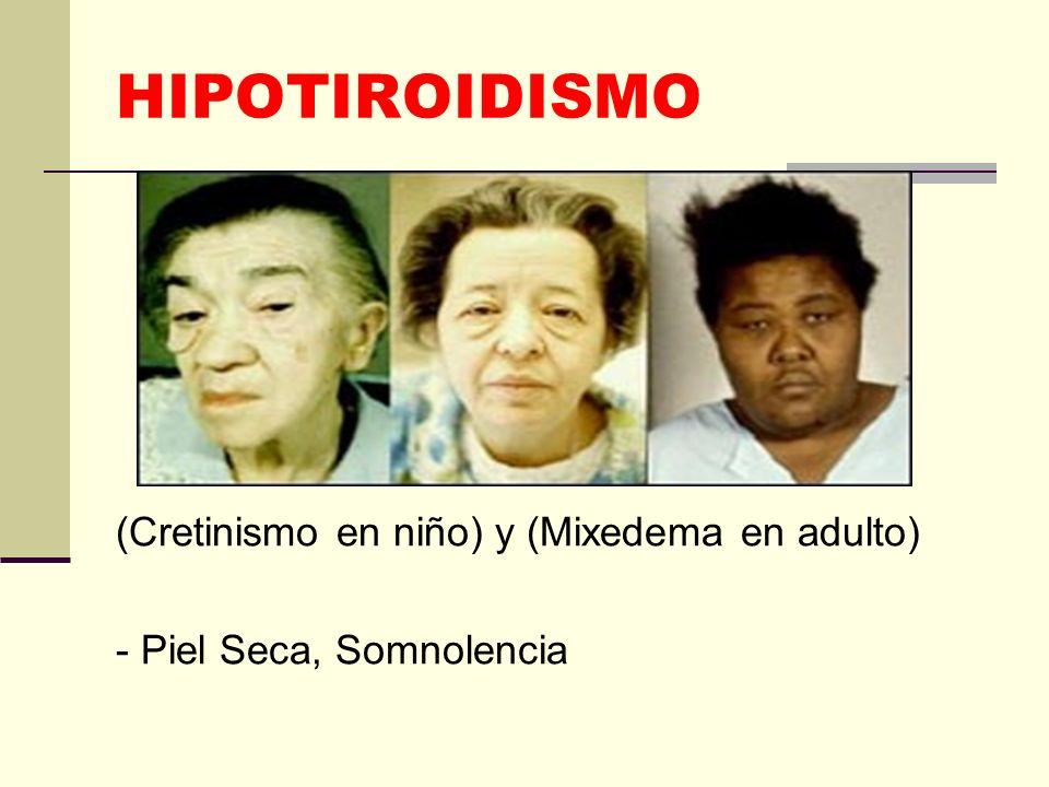 HIPOTIROIDISMO (Cretinismo en niño) y (Mixedema en adulto)