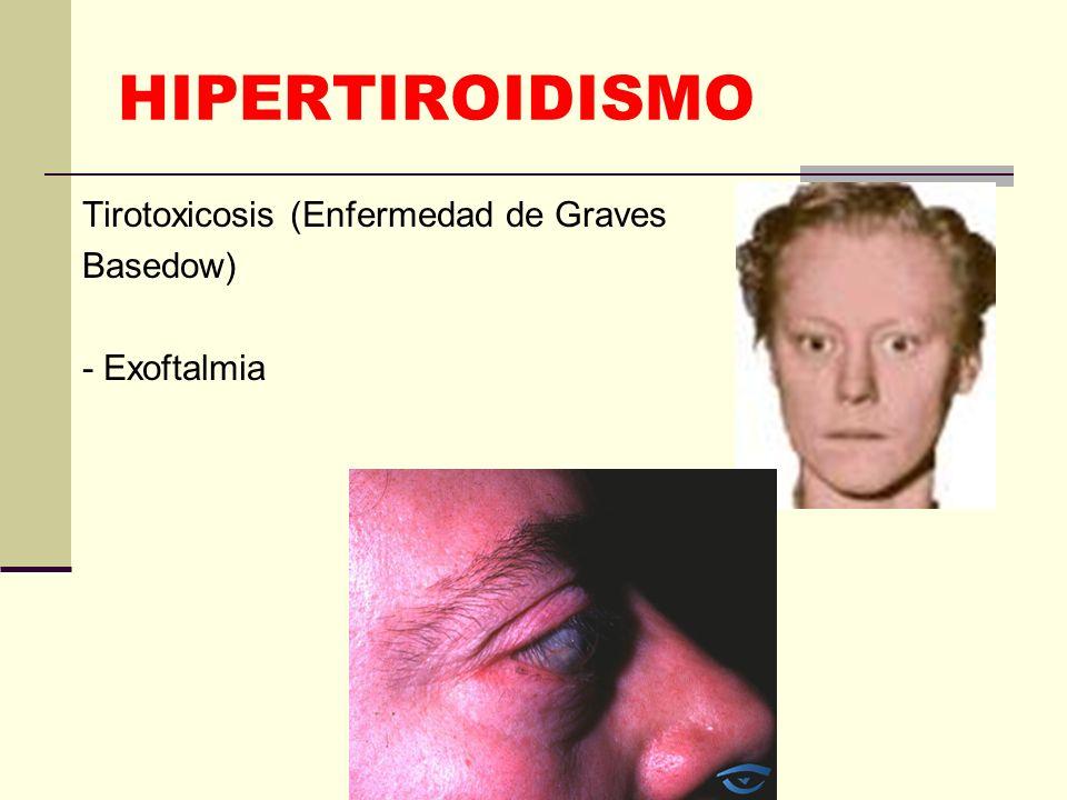 HIPERTIROIDISMO Tirotoxicosis (Enfermedad de Graves Basedow)