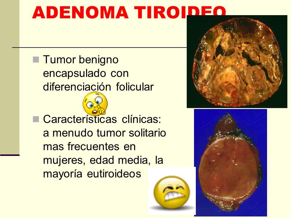 ADENOMA TIROIDEOTumor benigno encapsulado con diferenciación folicular.