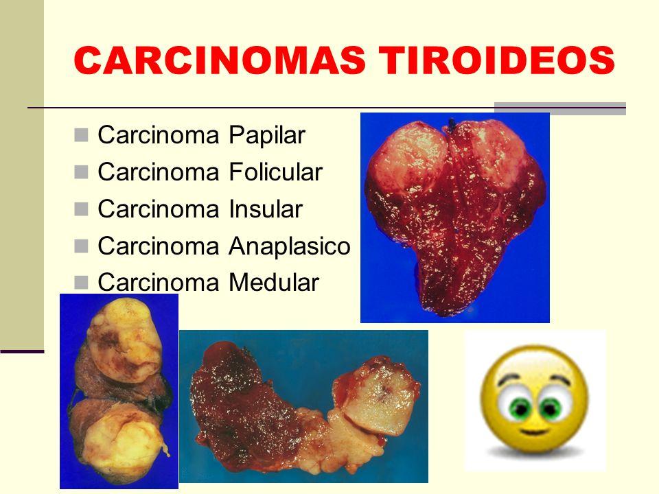 CARCINOMAS TIROIDEOS Carcinoma Papilar Carcinoma Folicular