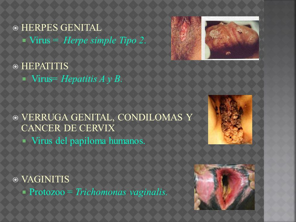 HERPES GENITAL Virus = Herpe simple Tipo 2. HEPATITIS. Virus= Hepatitis A y B. VERRUGA GENITAL, CONDILOMAS Y CANCER DE CERVIX.