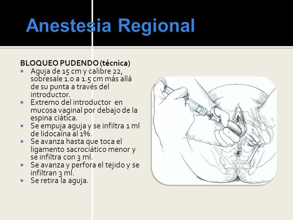 Anestesia Regional BLOQUEO PUDENDO (técnica)