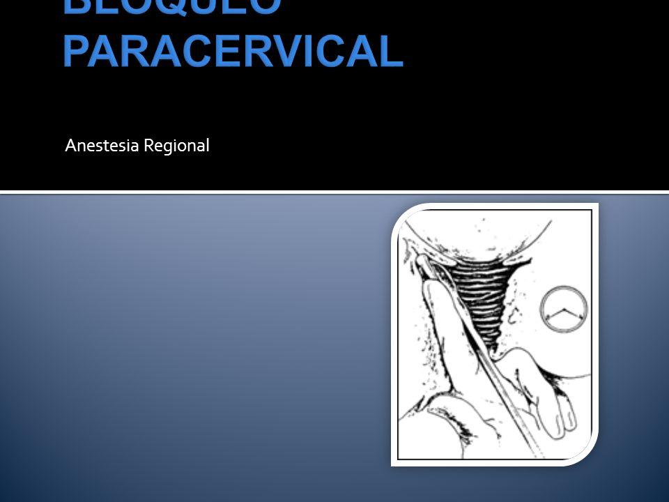 BLOQUEO PARACERVICAL Anestesia Regional