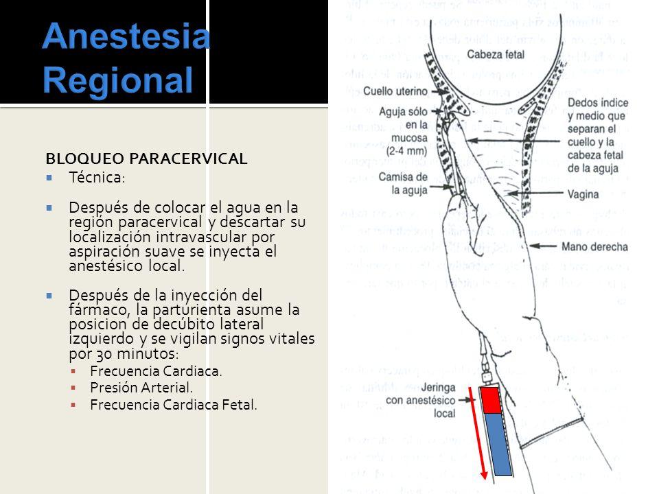 Anestesia Regional BLOQUEO PARACERVICAL Técnica: