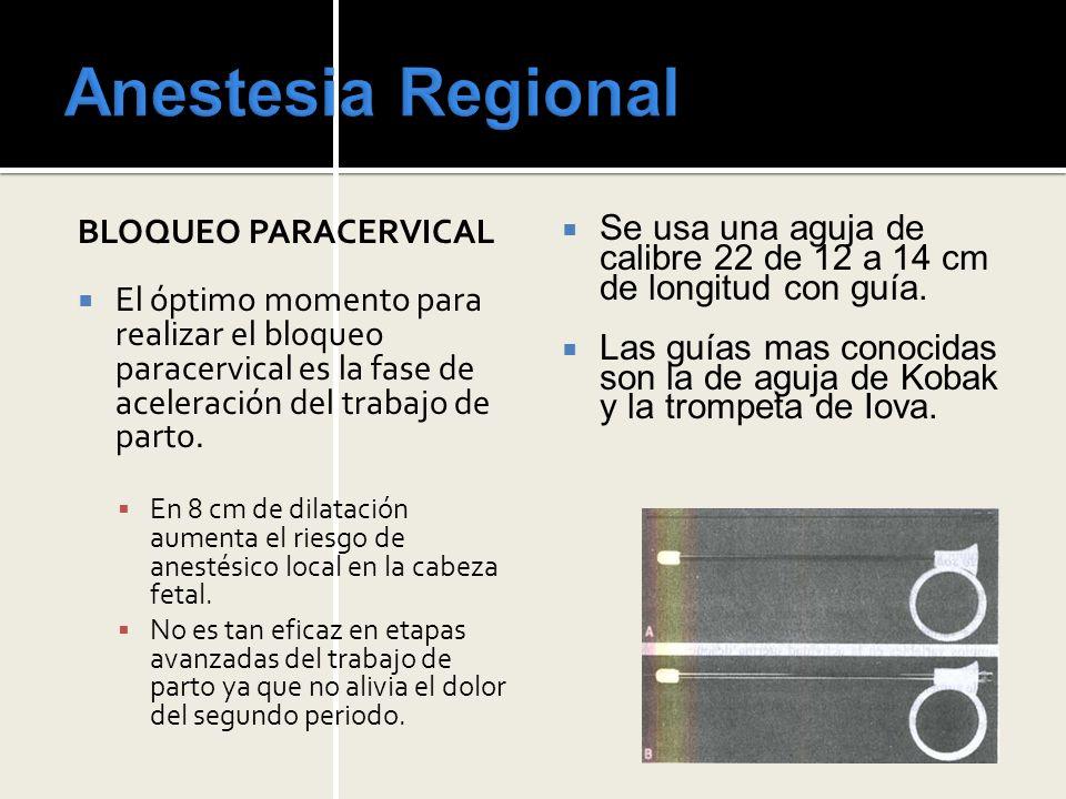 Anestesia Regional BLOQUEO PARACERVICAL