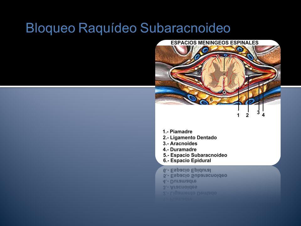 Bloqueo Raquídeo Subaracnoideo