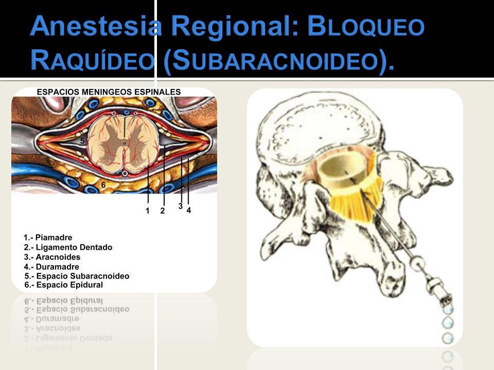 Anestesia Regional: Bloqueo Raquídeo (Subaracnoideo).