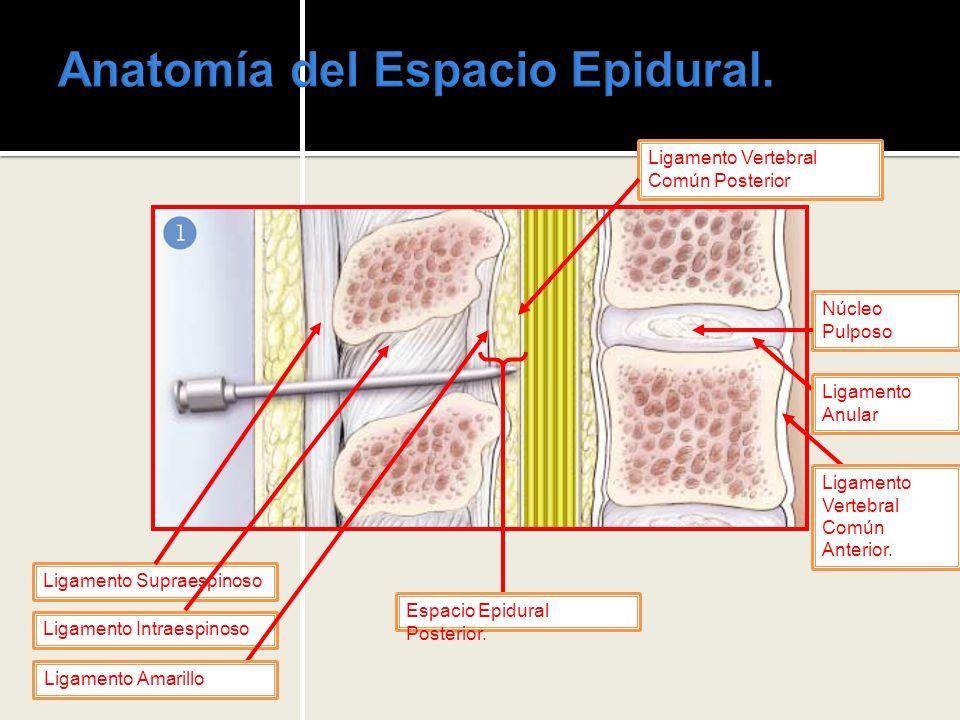 Anatomía del Espacio Epidural.