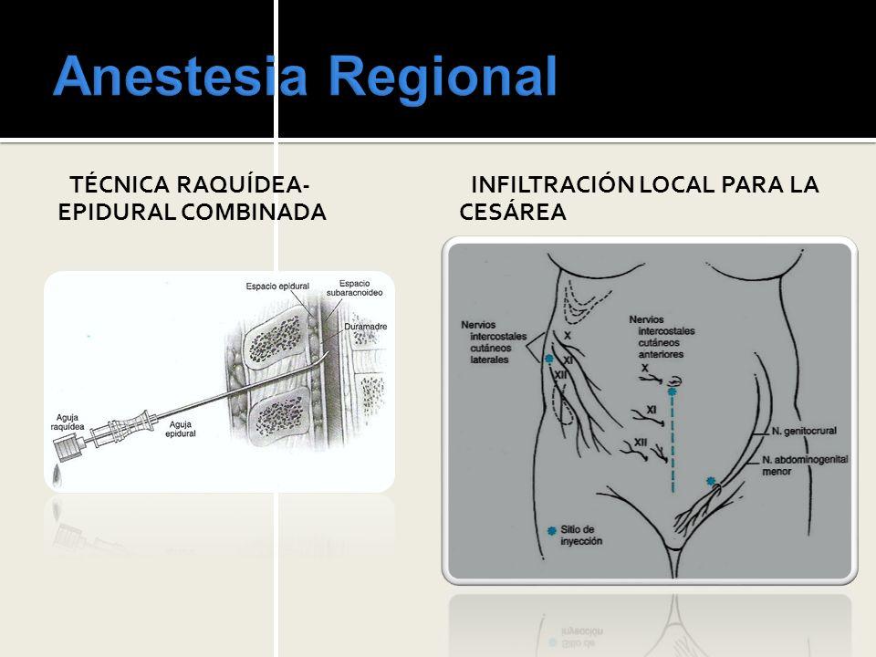 Anestesia Regional TÉCNICA RAQUÍDEA-EPIDURAL COMBINADA