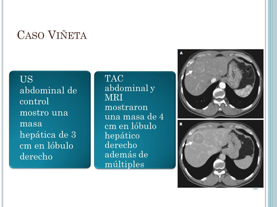 Caso Viñeta US abdominal de control mostro una masa hepática de 3 cm en lóbulo derecho.