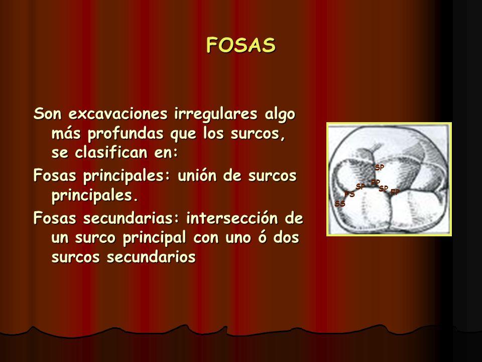 FOSAS Son excavaciones irregulares algo más profundas que los surcos, se clasifican en: Fosas principales: unión de surcos principales.