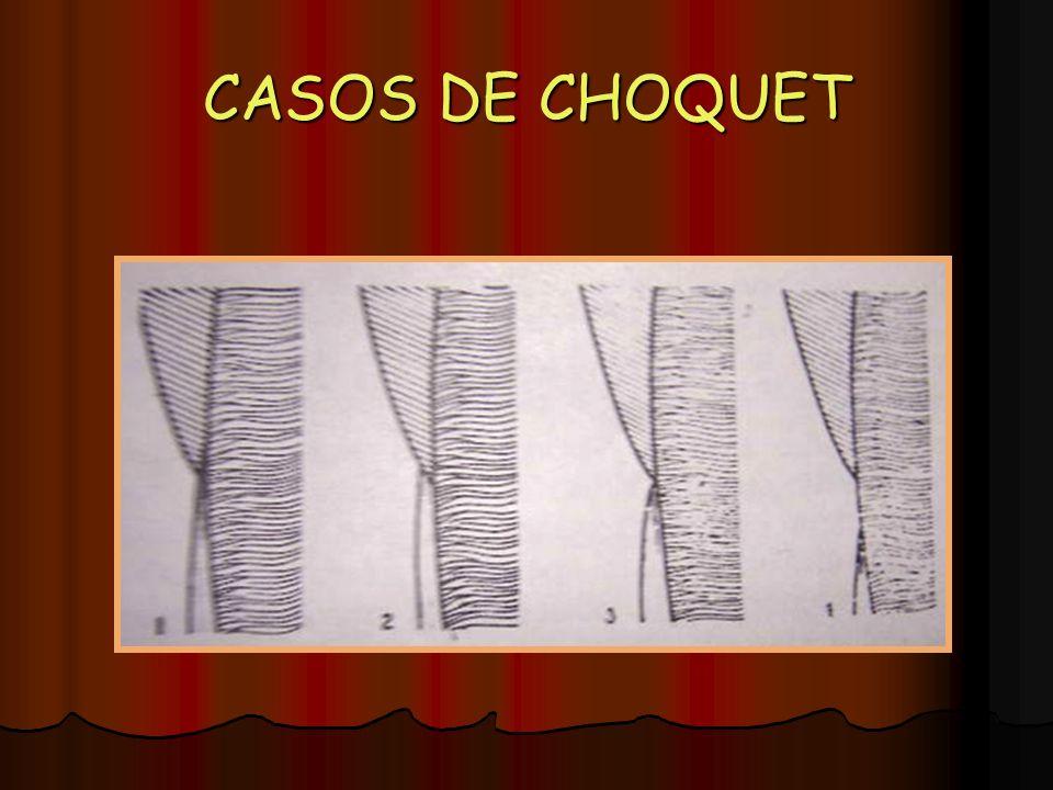 CASOS DE CHOQUET