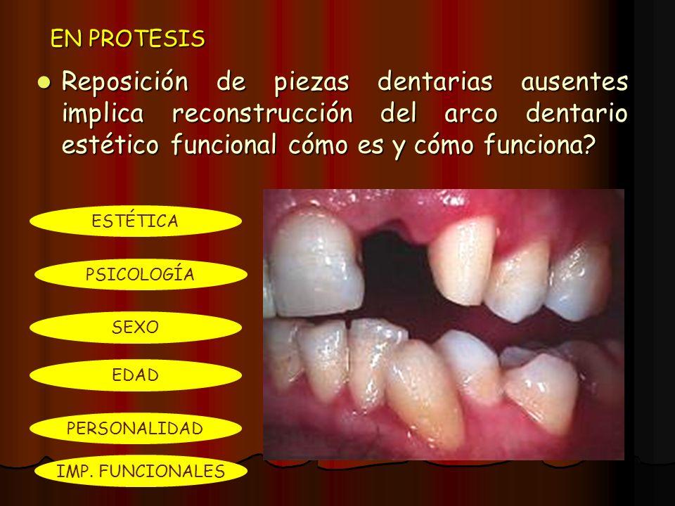EN PROTESIS Reposición de piezas dentarias ausentes implica reconstrucción del arco dentario estético funcional cómo es y cómo funciona