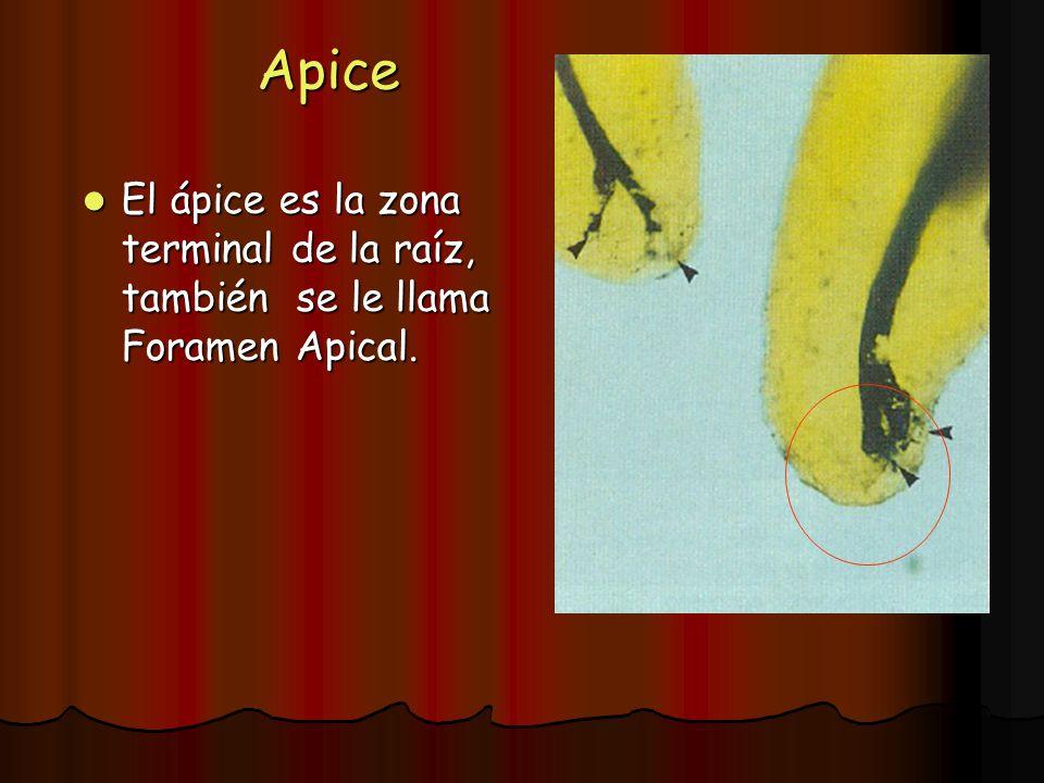 Apice El ápice es la zona terminal de la raíz, también se le llama Foramen Apical.