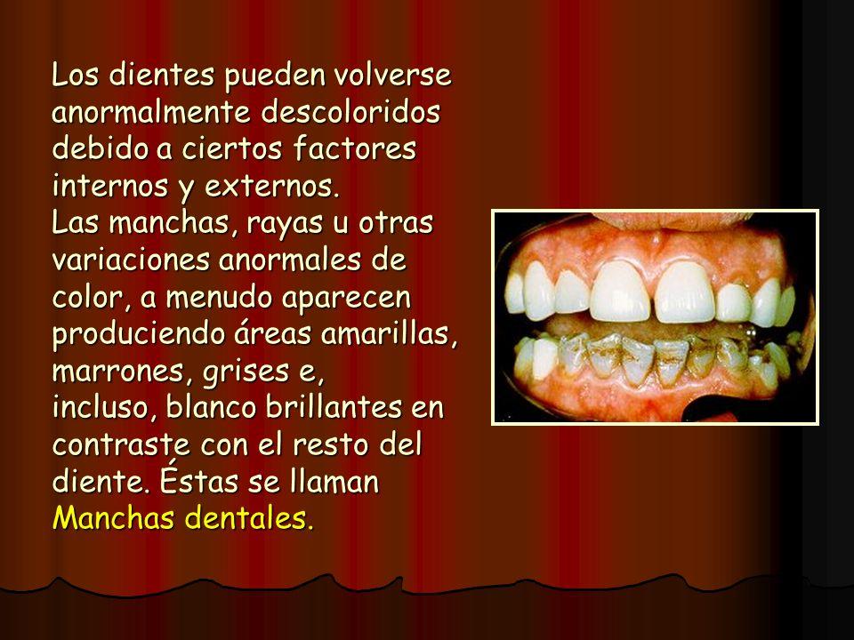Los dientes pueden volverse