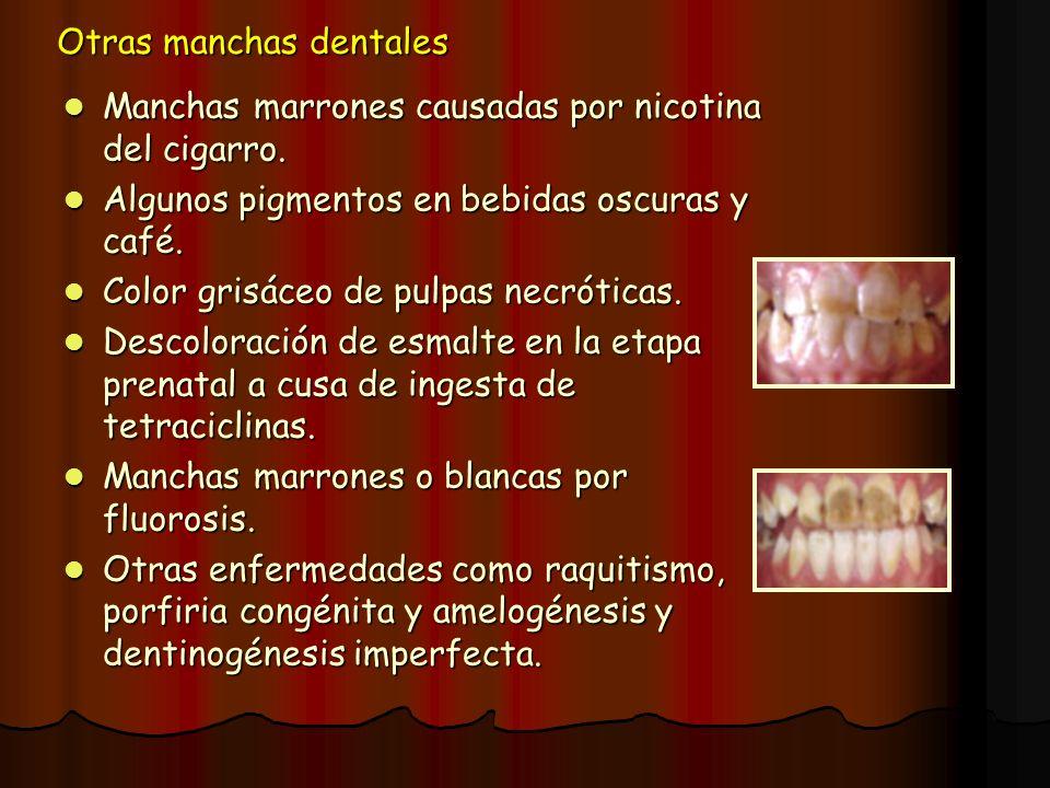 Otras manchas dentales