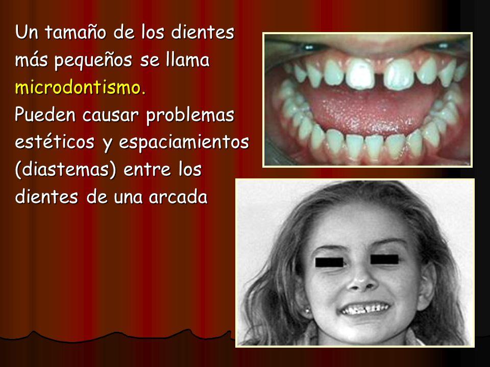 Un tamaño de los dientes