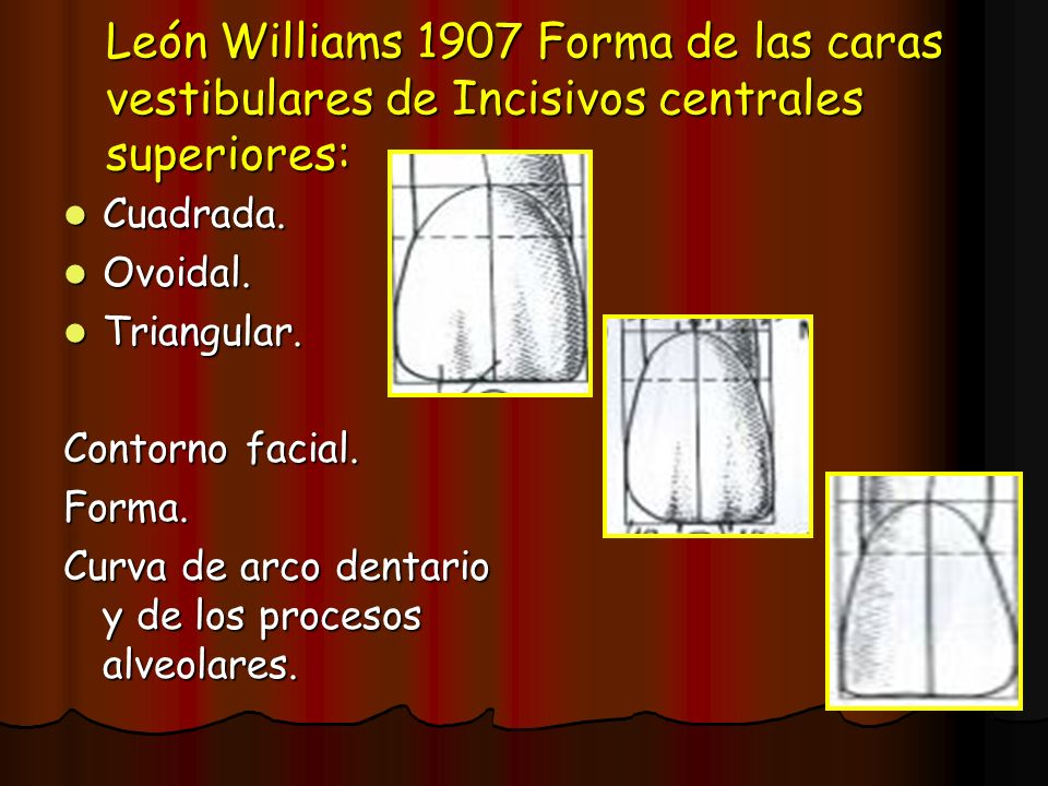 León Williams 1907 Forma de las caras vestibulares de Incisivos centrales superiores: