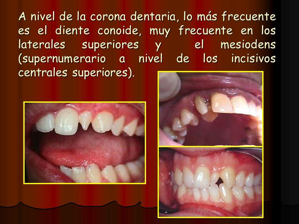 A nivel de la corona dentaria, lo más frecuente es el diente conoide, muy frecuente en los laterales superiores y el mesiodens (supernumerario a nivel de los incisivos centrales superiores).