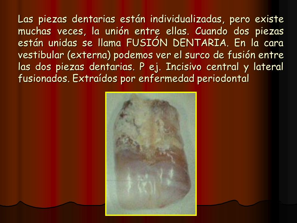 Las piezas dentarias están individualizadas, pero existe muchas veces, la unión entre ellas.