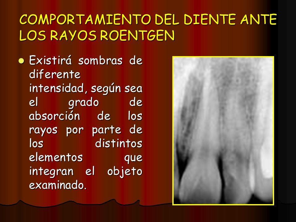 COMPORTAMIENTO DEL DIENTE ANTE LOS RAYOS ROENTGEN