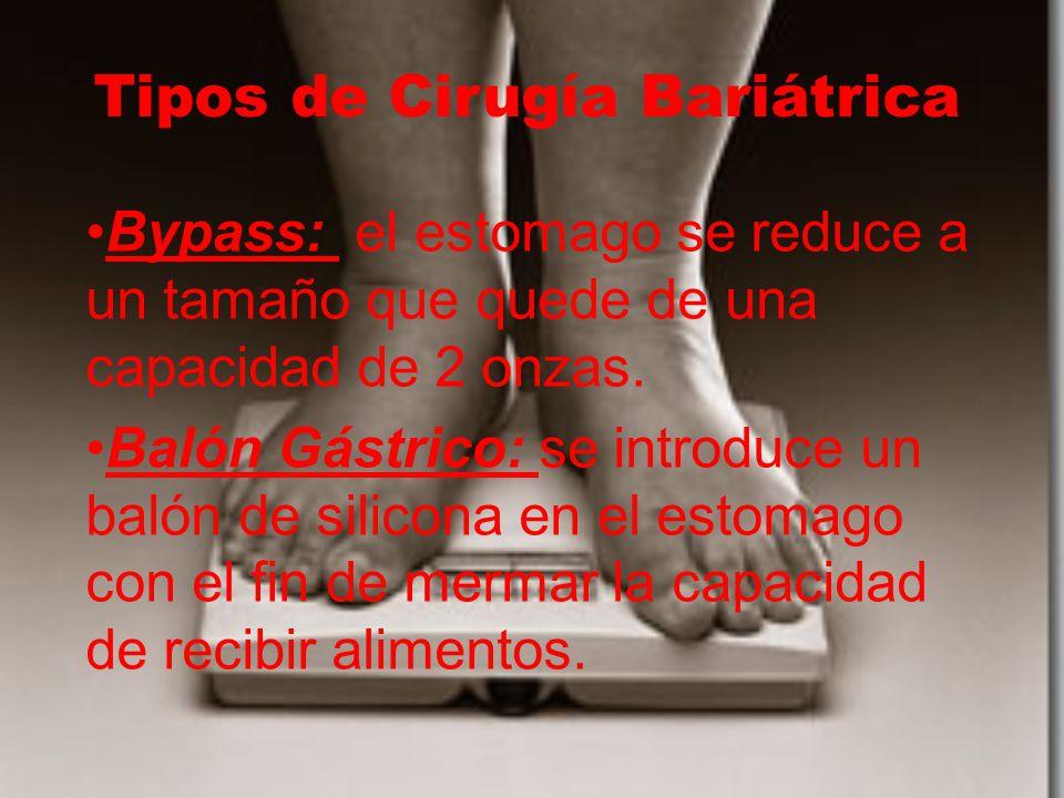 Tipos de Cirugía Bariátrica