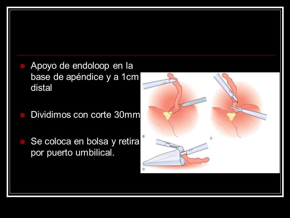 Apoyo de endoloop en la base de apéndice y a 1cm distal