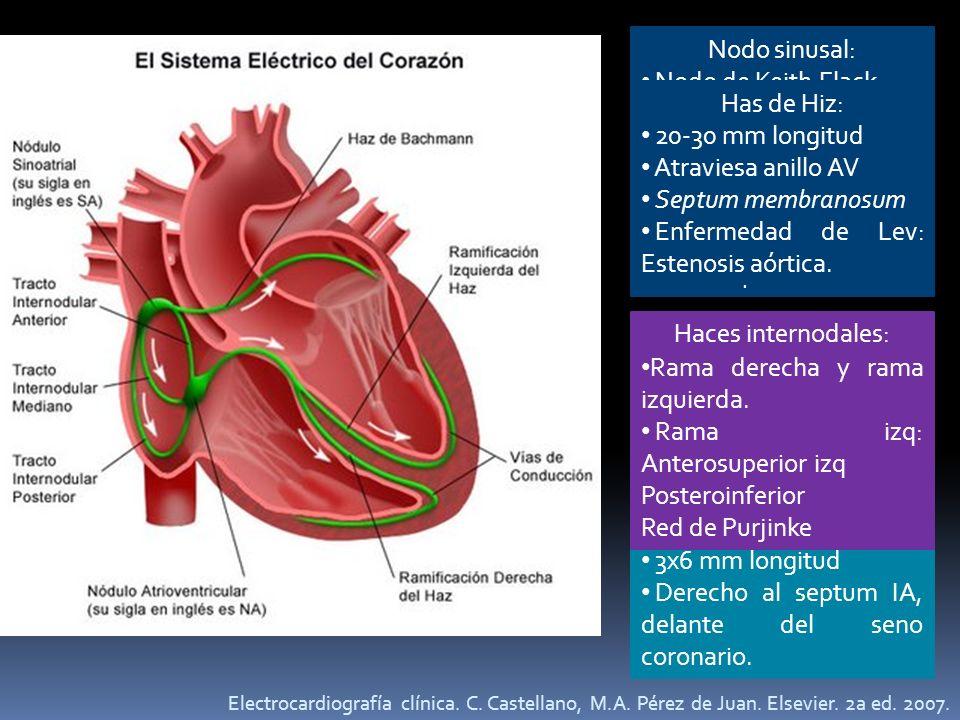 Acumulación de células en el subendocardio atrial.
