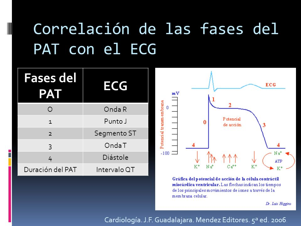 Correlación de las fases del PAT con el ECG