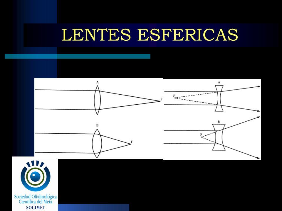 LENTES ESFERICAS