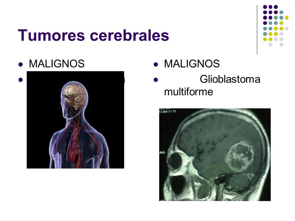 Tumores cerebrales MALIGNOS Glioblastoma multiforme MALIGNOS