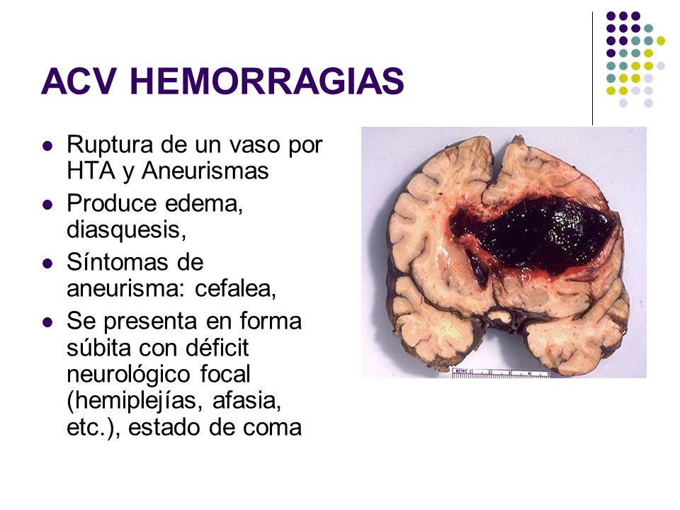 ACV HEMORRAGIAS Ruptura de un vaso por HTA y Aneurismas