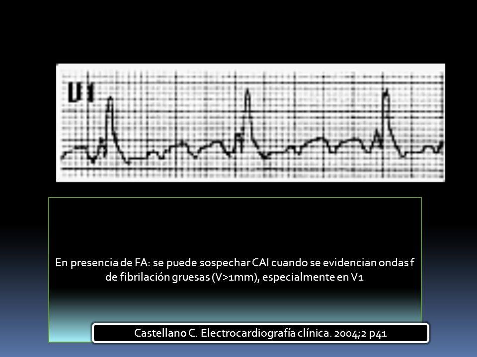 Castellano C. Electrocardiografía clínica. 2004;2 p41