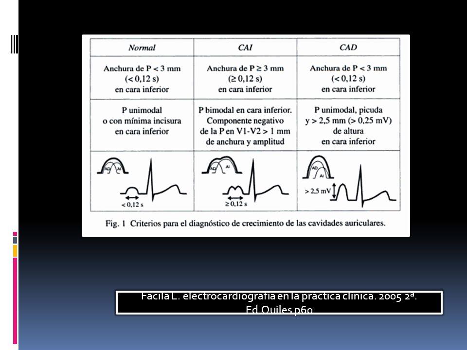 Facila L. electrocardiografía en la práctica clínica. 2005 2ª. Ed