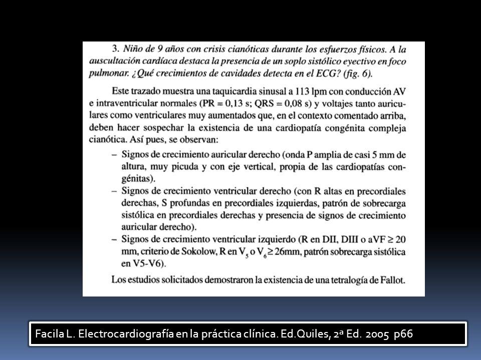 Facila L. Electrocardiografía en la práctica clínica. Ed.Quiles, 2ª Ed. 2005 p66