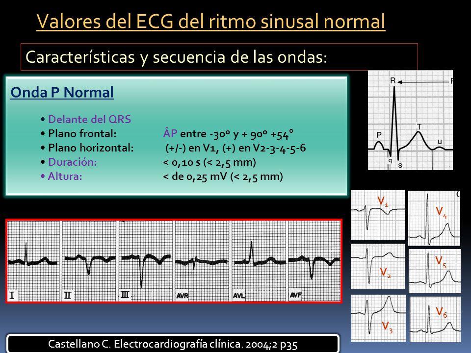 Castellano C. Electrocardiografía clínica. 2004;2 p35