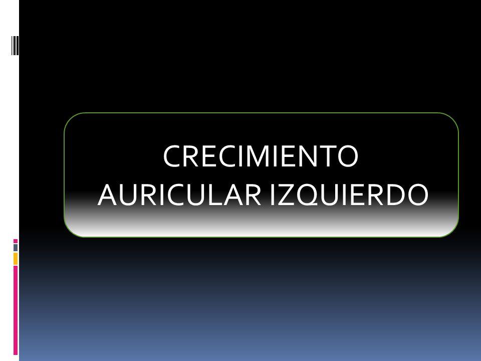 CRECIMIENTO AURICULAR IZQUIERDO