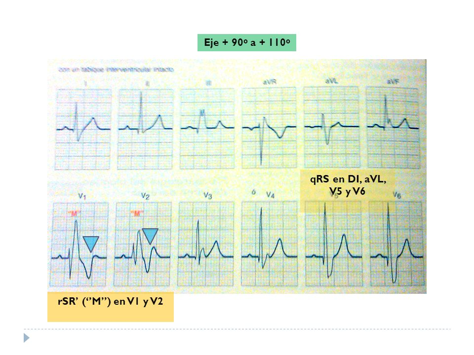Eje + 90º a + 110º qRS en DI, aVL, V5 y V6 rSR' (''M'') en V1 y V2