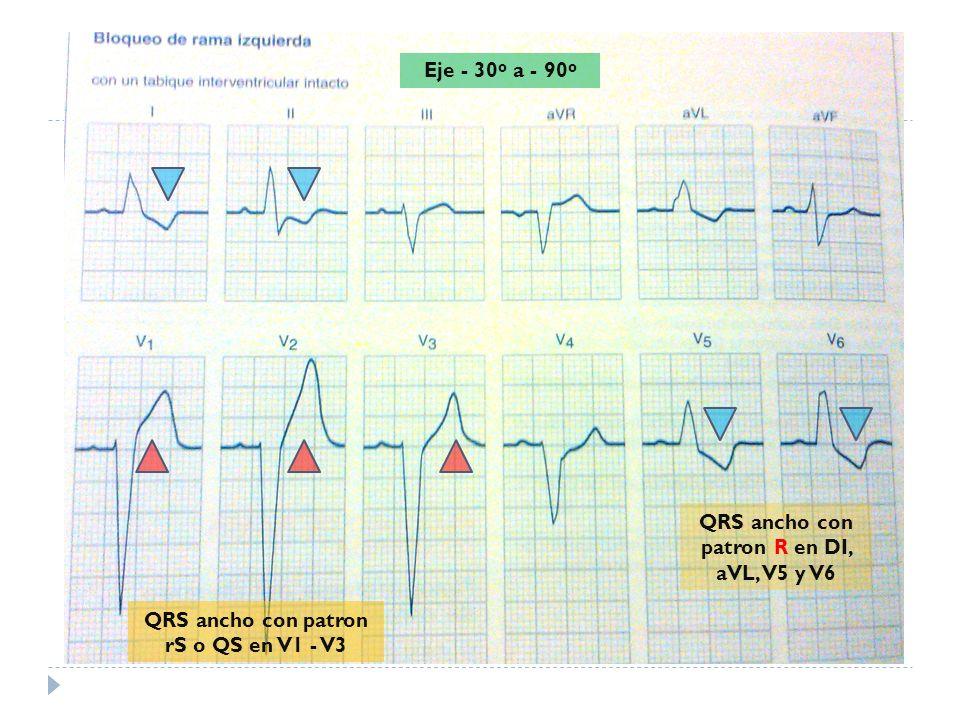 QRS ancho con patron R en DI, aVL, V5 y V6