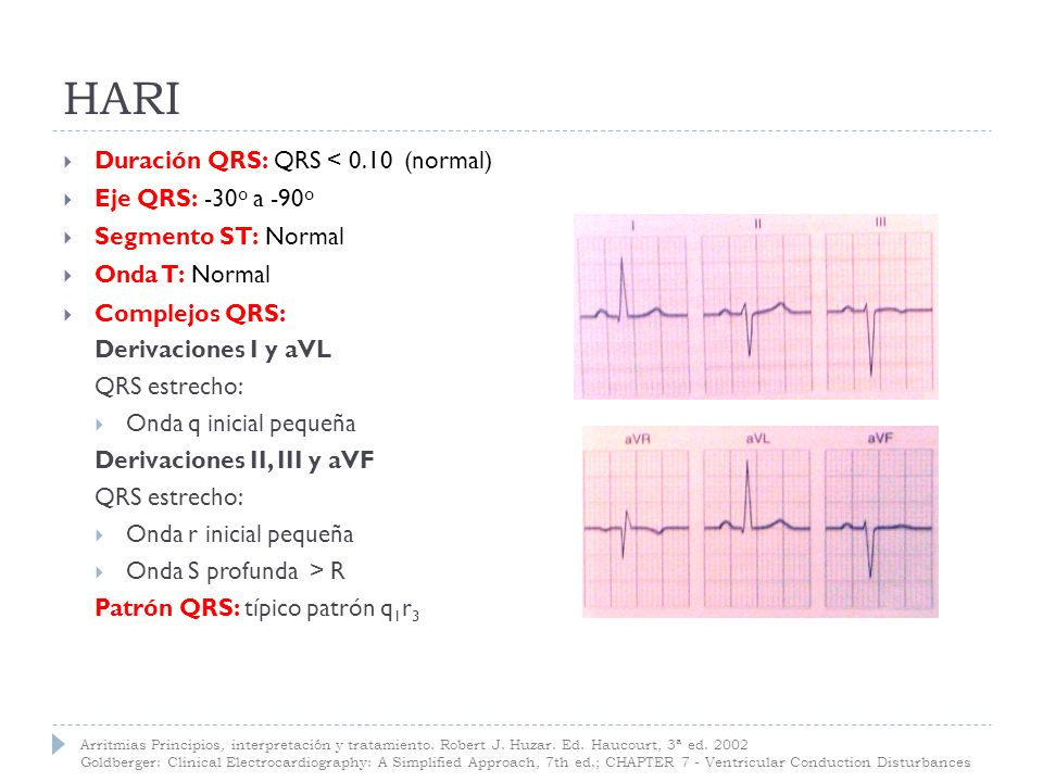 HARI Duración QRS: QRS < 0.10 (normal) Eje QRS: -30º a -90º