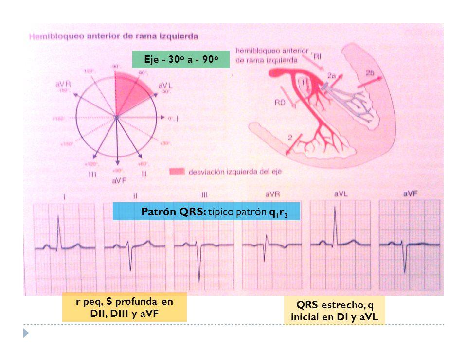 Patrón QRS: típico patrón q1r3