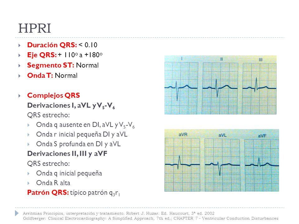 HPRI Duración QRS: < 0.10 Eje QRS: + 110º a +180º