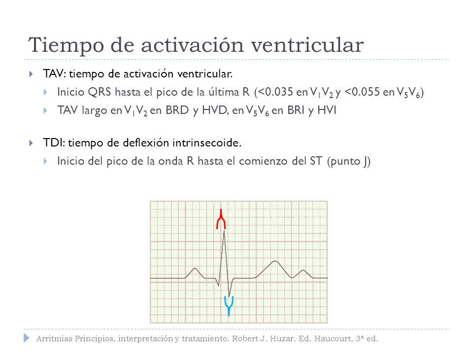 Tiempo de activación ventricular