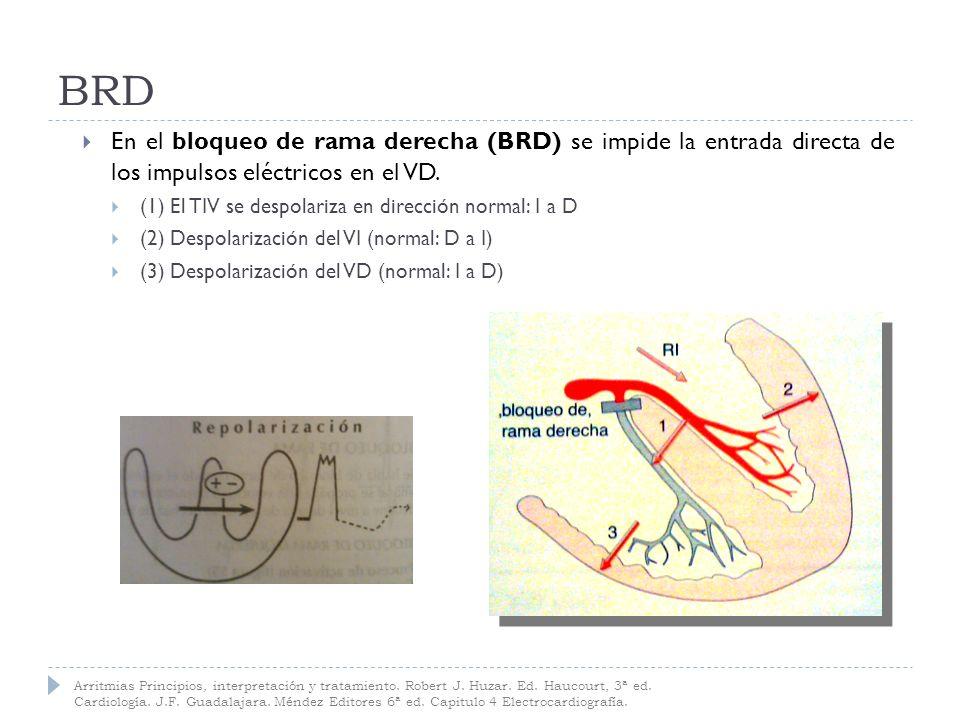 BRD En el bloqueo de rama derecha (BRD) se impide la entrada directa de los impulsos eléctricos en el VD.