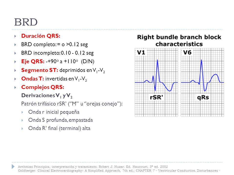 BRD Duración QRS: BRD completo: = o >0.12 seg